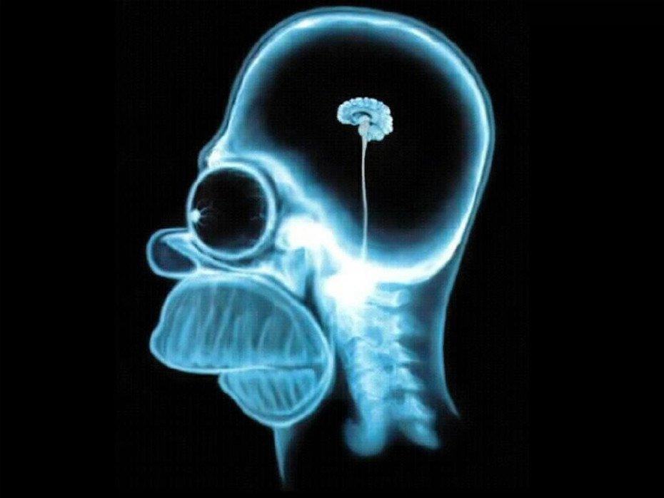small-brain
