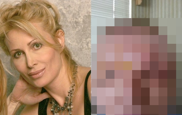 Sieviete vēlējās saglabāt jaunību ar botoksa injekcijām. Kosmetologa kļūdas dēļ, sieviete tika izkropļota injekciju dēļ līdz nepazīšanai…