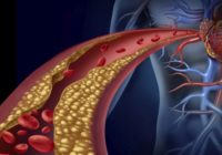 Ēd šos produktus vairāk un dzīvosi ilgāk – tie iztīrīs artērijas un pasargās no sirdslēkmēm